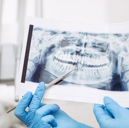 Loss of bone density: